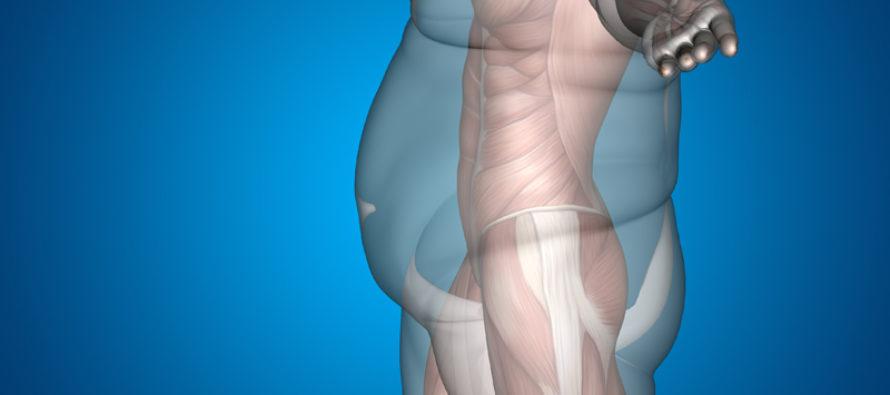 Overvekt og fedme lenge før en diabetes-diagnose